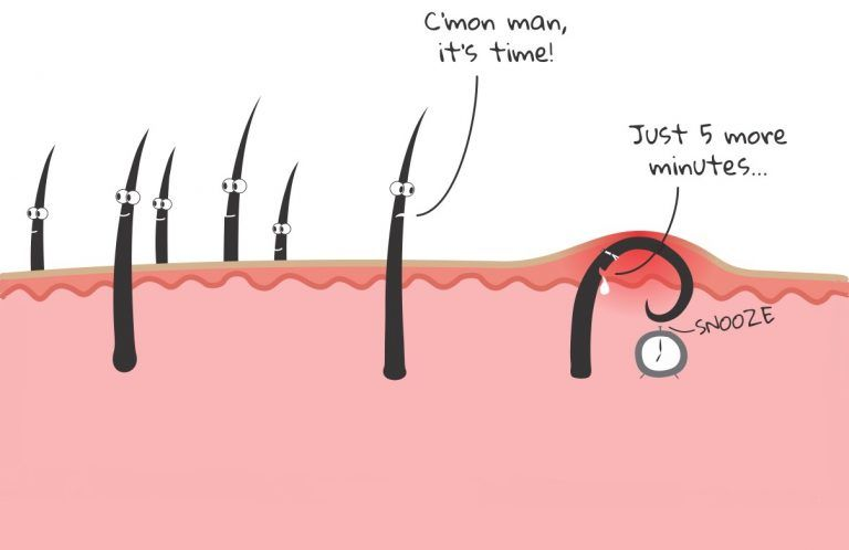 Tips on How to Get Rid of an Ingrown Hair